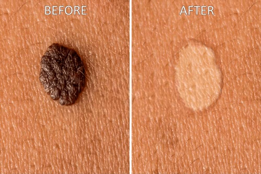 Remove Skin Tags Fast