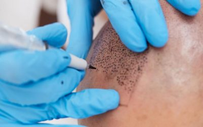 Micropigmentation for Hair Loss
