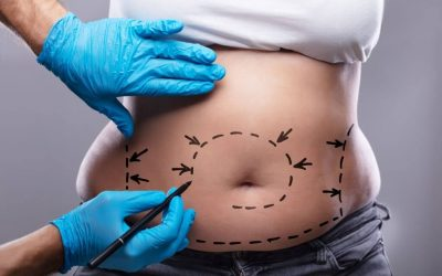How Liposuction Works
