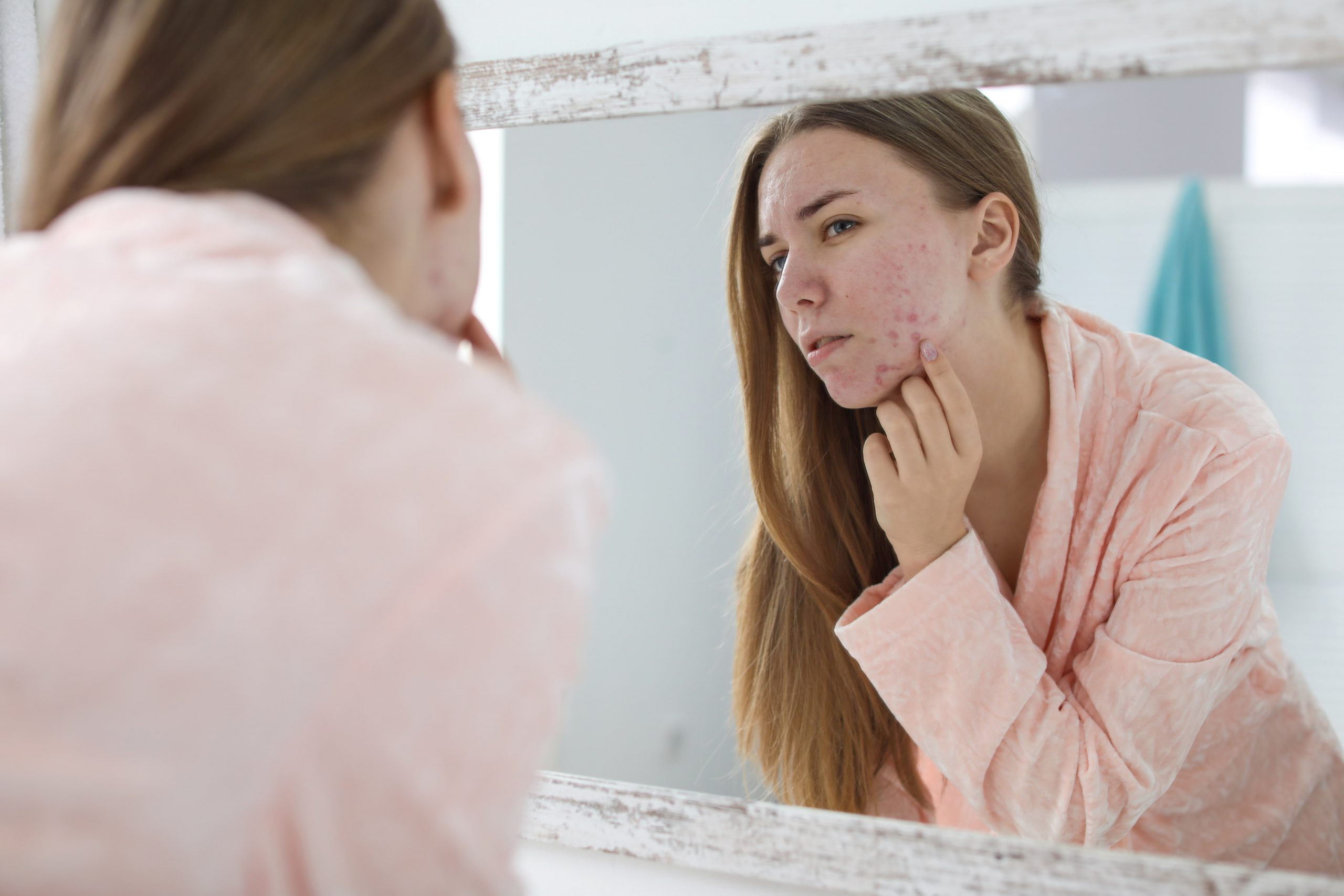 Acne Causes, Effects, Prevention