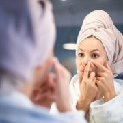 Acne Treatment and Prevention Tips