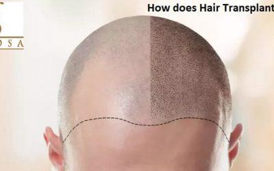 How Does Hair Transplantation Work